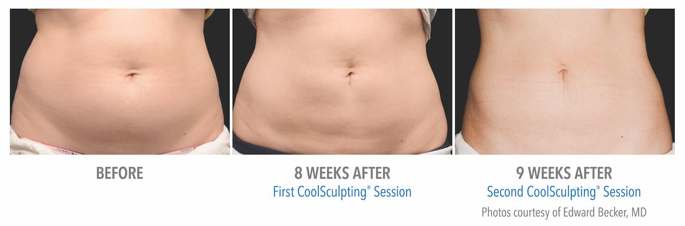 torrance-coolsculpting-stomach-fat-loss