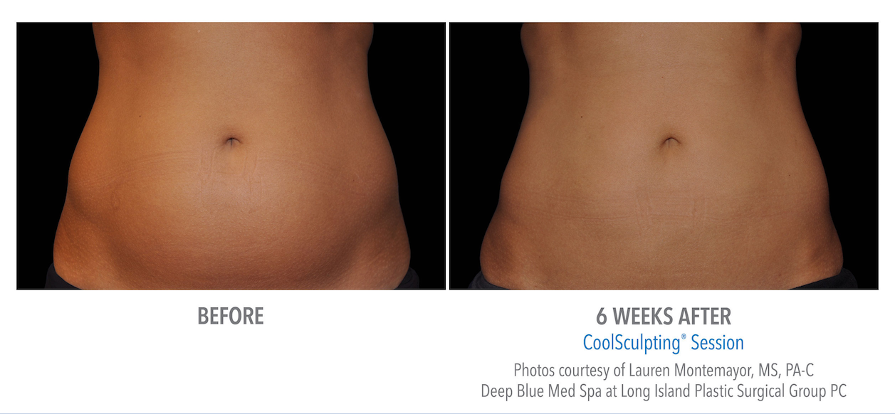 torrance-coolsculpting-stomach-weight-loss