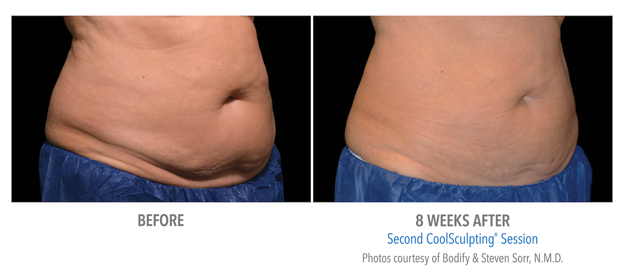 best-torrance-coolsculpting-stomach