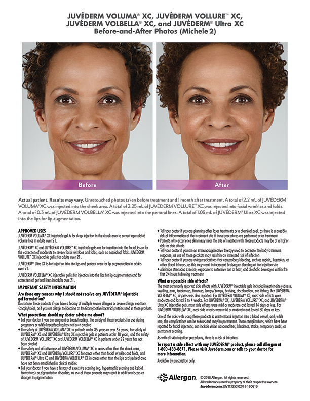 torrance-medical-Juvederm-before-after-Michele