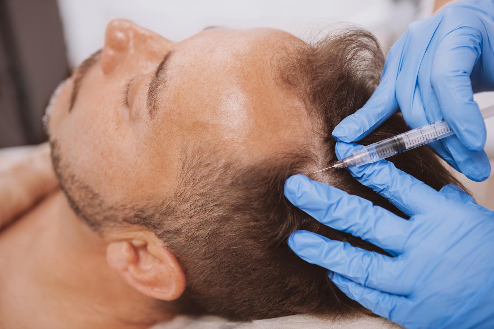 hair-loss-torrance-hair-restoration-treatment-near-me