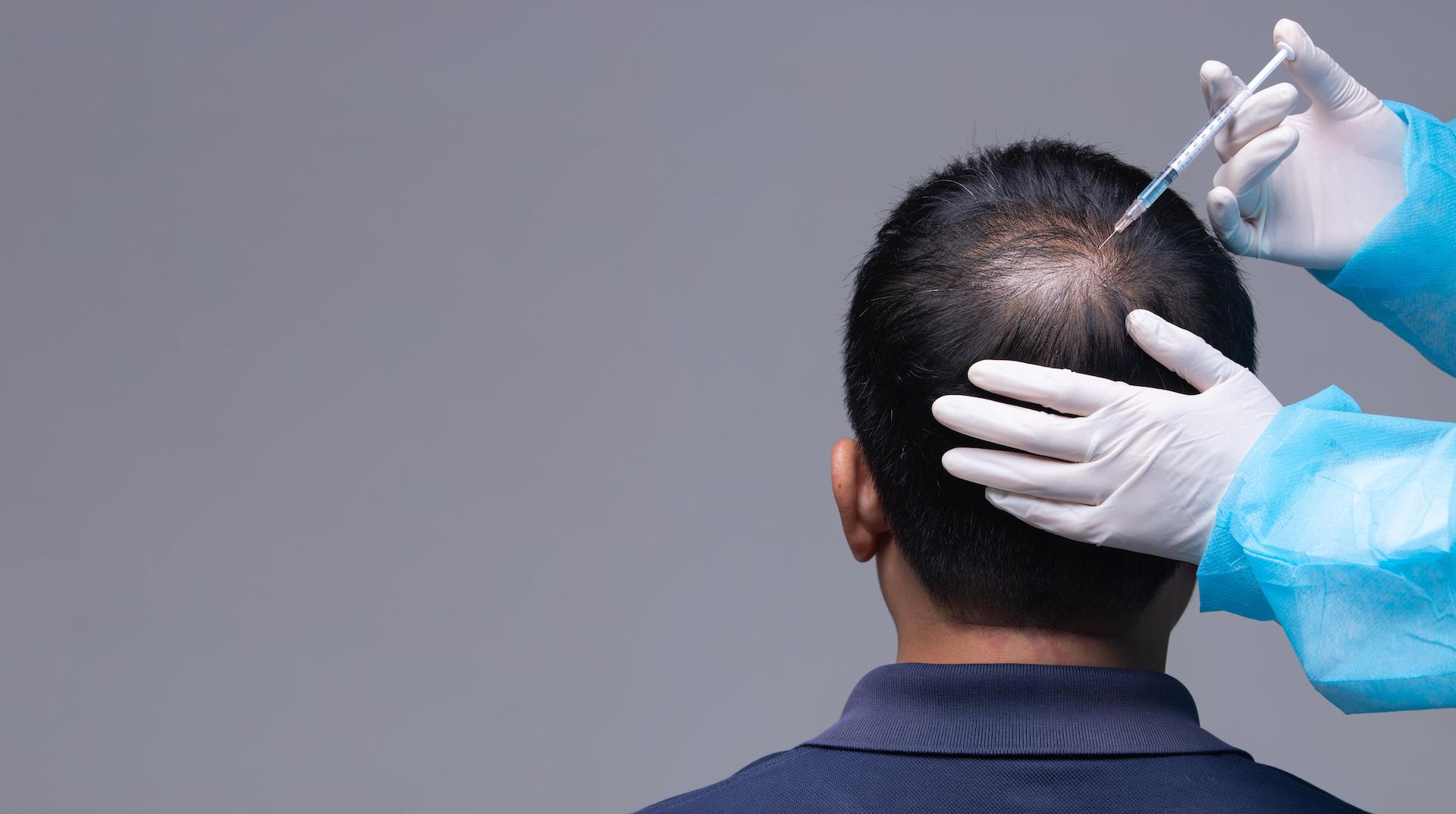 hair-restoration-torrance-hair-loss-treatment-med-spa-near-me