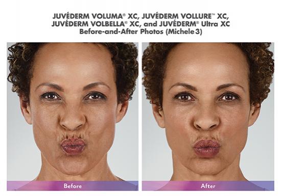 juvederm-before-after-torrance-medical-spa