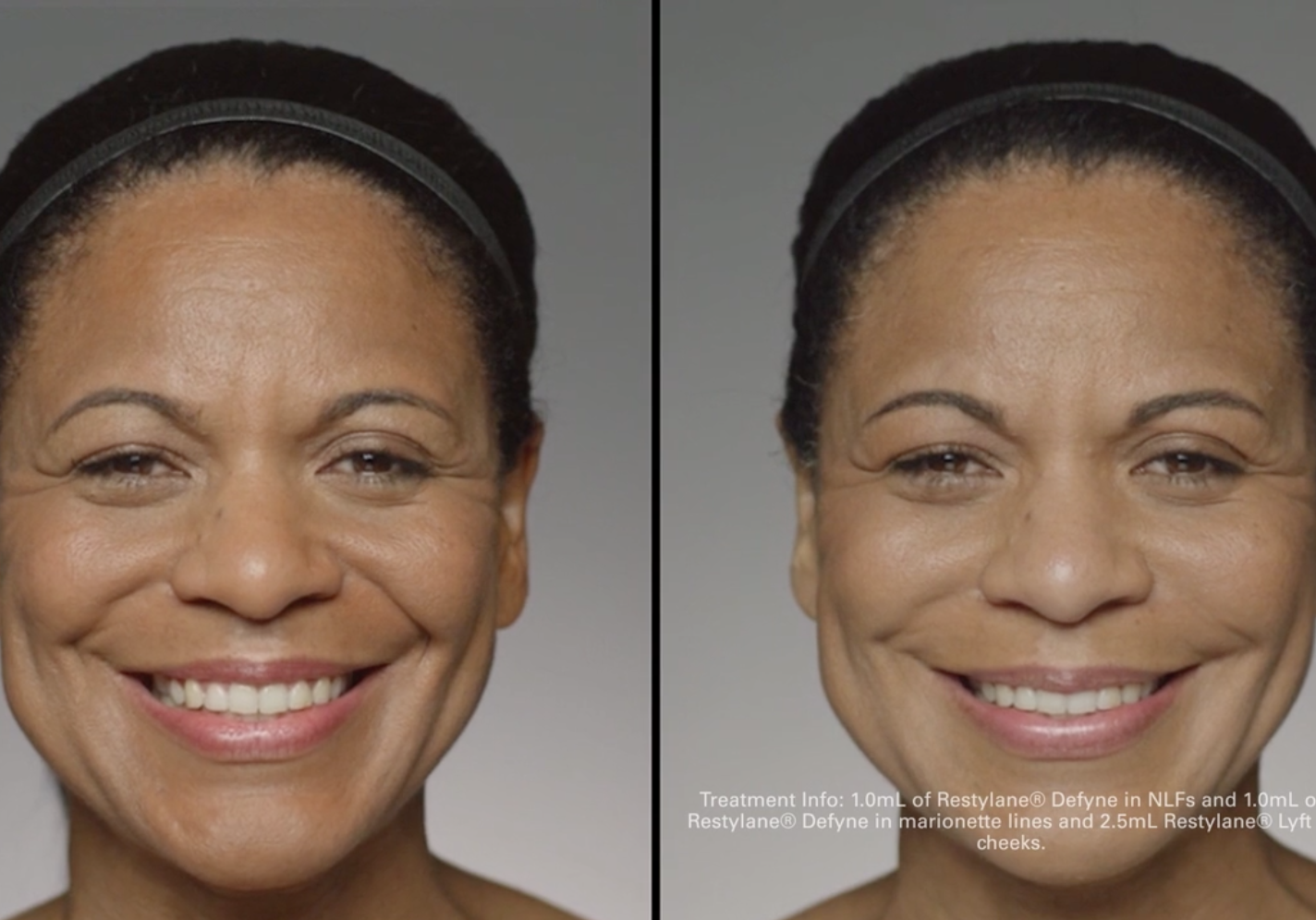 restylane-before-after-torrance